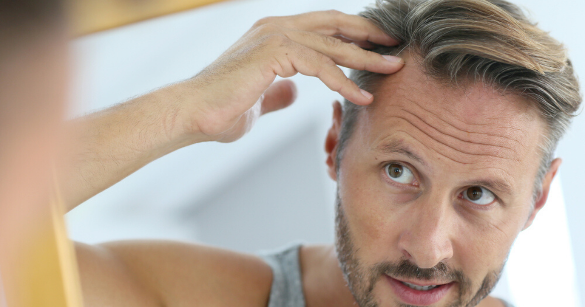 Middle aged man wearing custom hair system