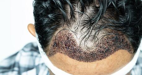 Hair transplants for men can result in scarring and are not always recommended