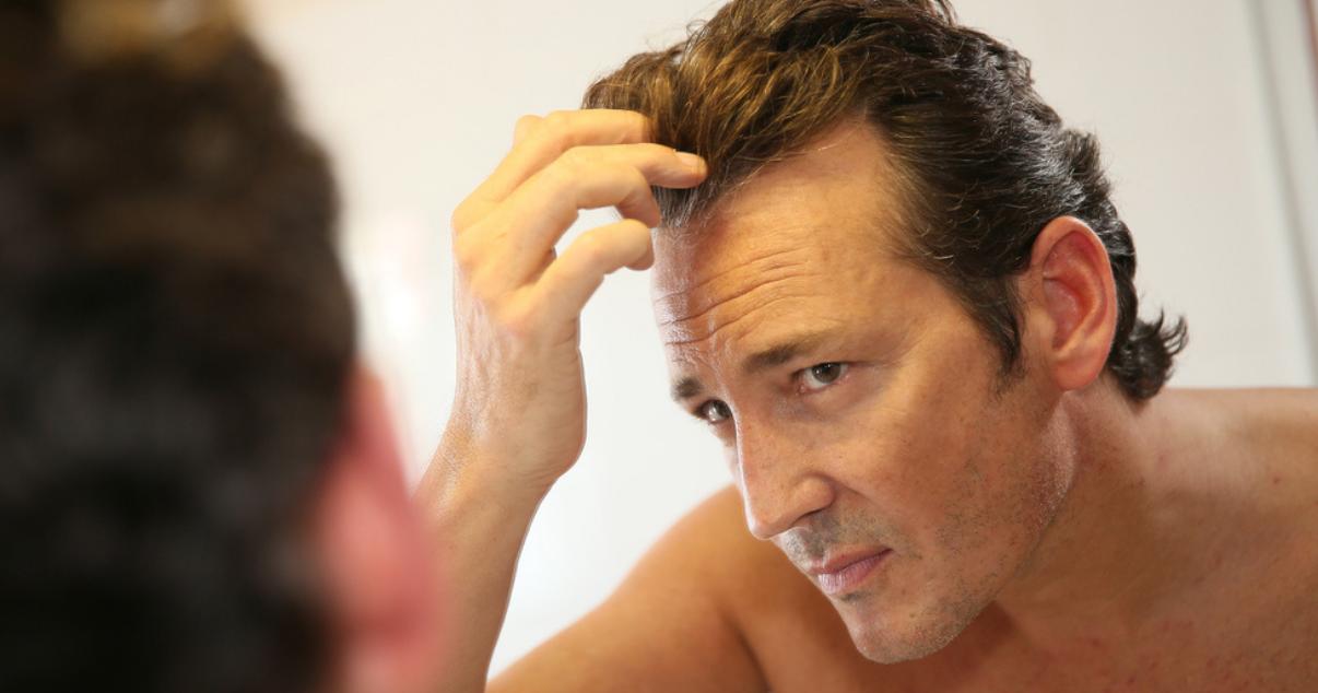 Man deciding if he should perform a hair transplant for men